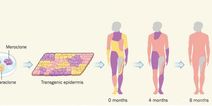 30085 Геномодифікована шкіра врятувала дитині життя
